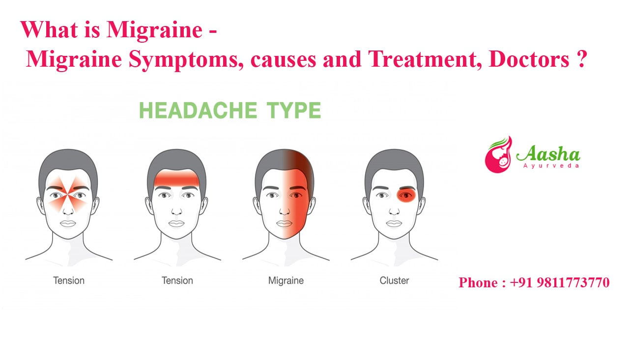What is Migraine - Migraine Symptoms, causes and Treatment, Migraine Doctors ?